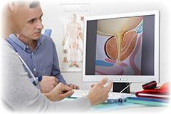 Er der bivirkninger af behandlinger og prostata undersøgelse?