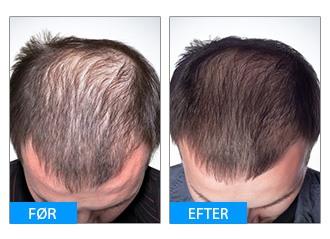 Før og efter billede af TRX2