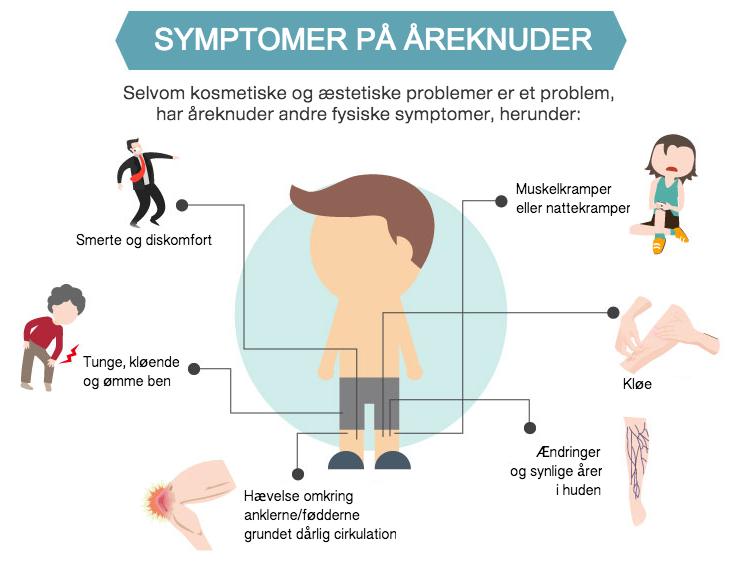 Symptomer på åreknuder?