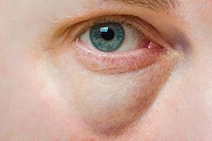 øjen-ødemer