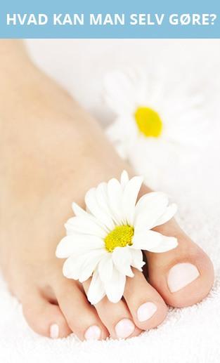 Forebyggelse og naturlig behandling af fodsvamp