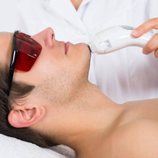 Kan laser bruges til hårfjerning i ansigtet?