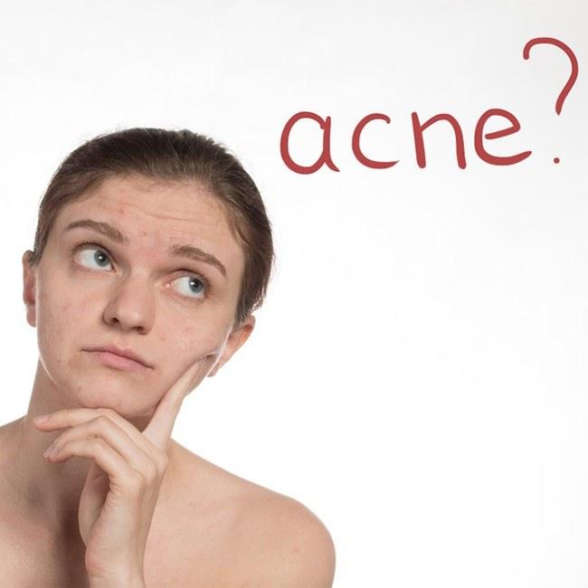 6 naturlige urter som kan hjælpe dig mod akne