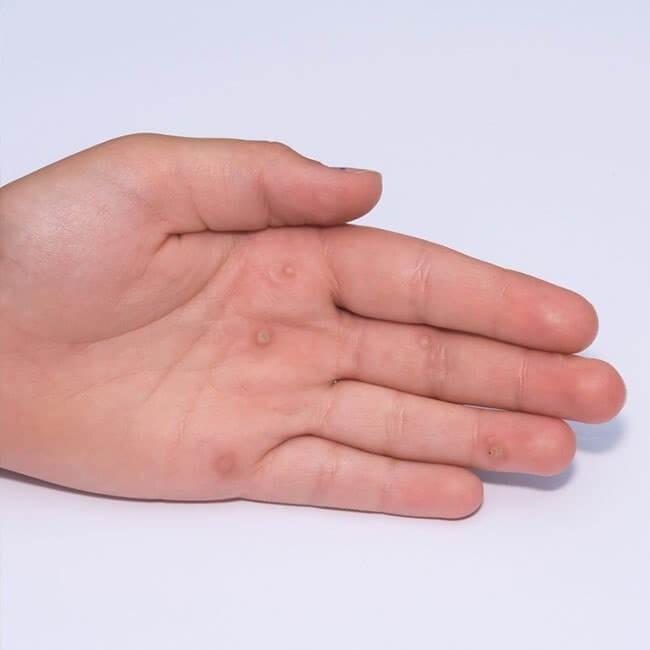 Undgå at blive smittet med fnat   Symptomer på fnat   ShytoBuy