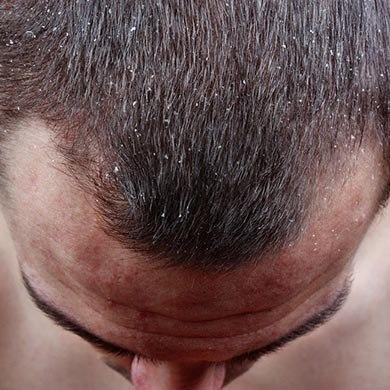 Sådan behandler du hårtab og begyndende skaldethed