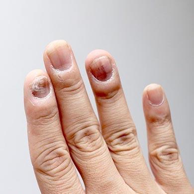 Hvad er en negleinfektion, og hvordan behandles den?