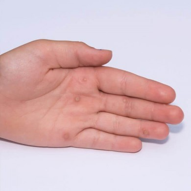 Symptomer på svamp og infektion i huden