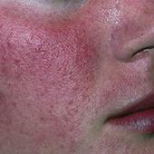 Inflammatorisk Rosacea