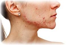 Hvad er et acne ar?