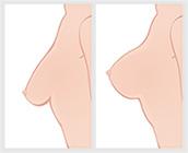 Hvad er et brystløft?