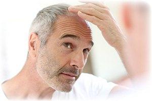 Tab af håret grundet genetiske forhold