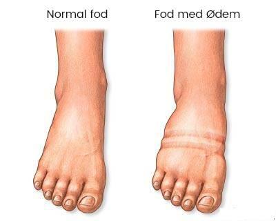 normal fod og fod med ødem sammenligning