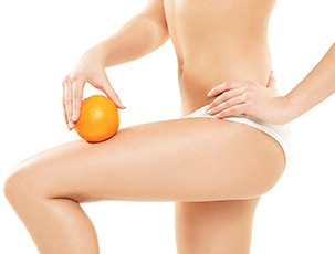 Appelsinhud kan forekomme hos alle